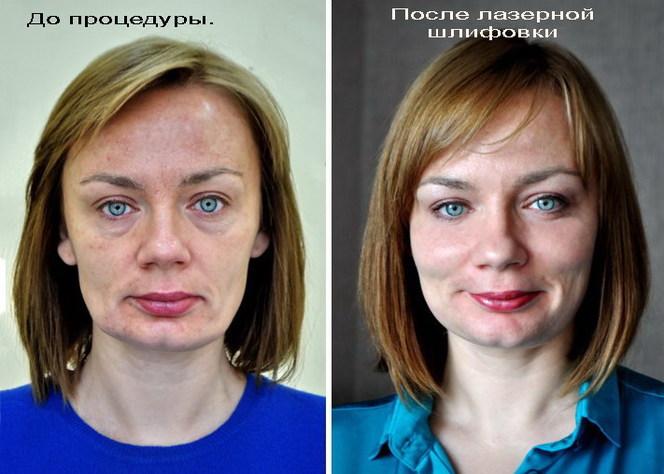 Коррекция овала лица косметология